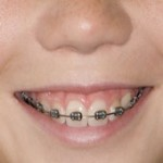 ORTHO BRACES
